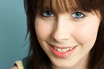 clear braces in orchard park ny